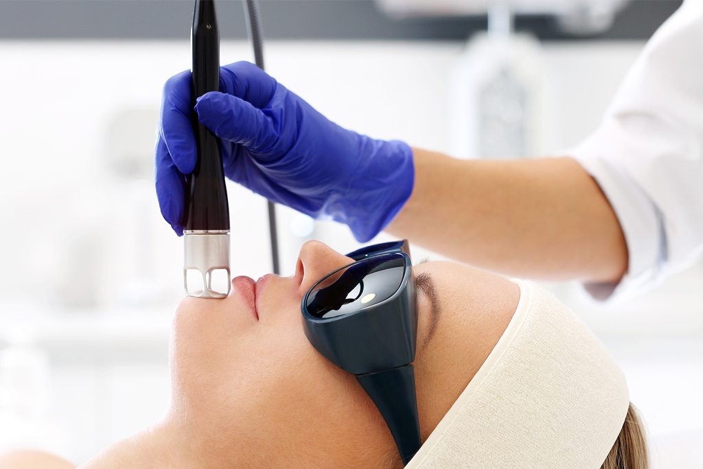 qswitched laser treatment
