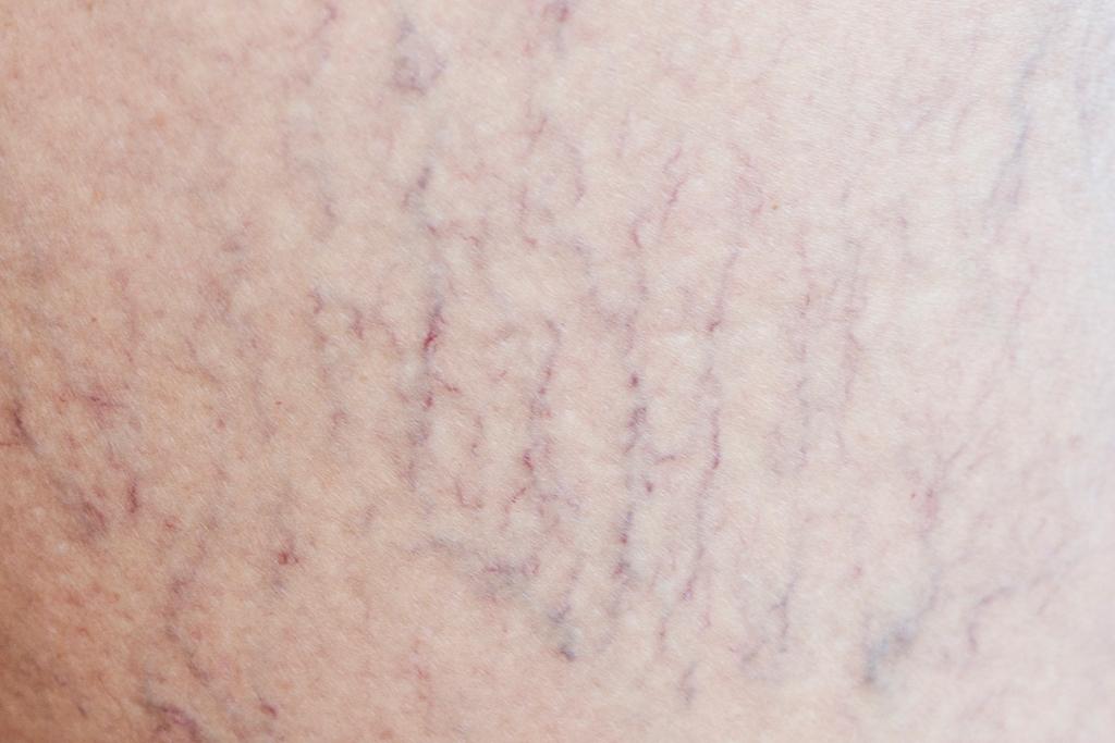 red veins